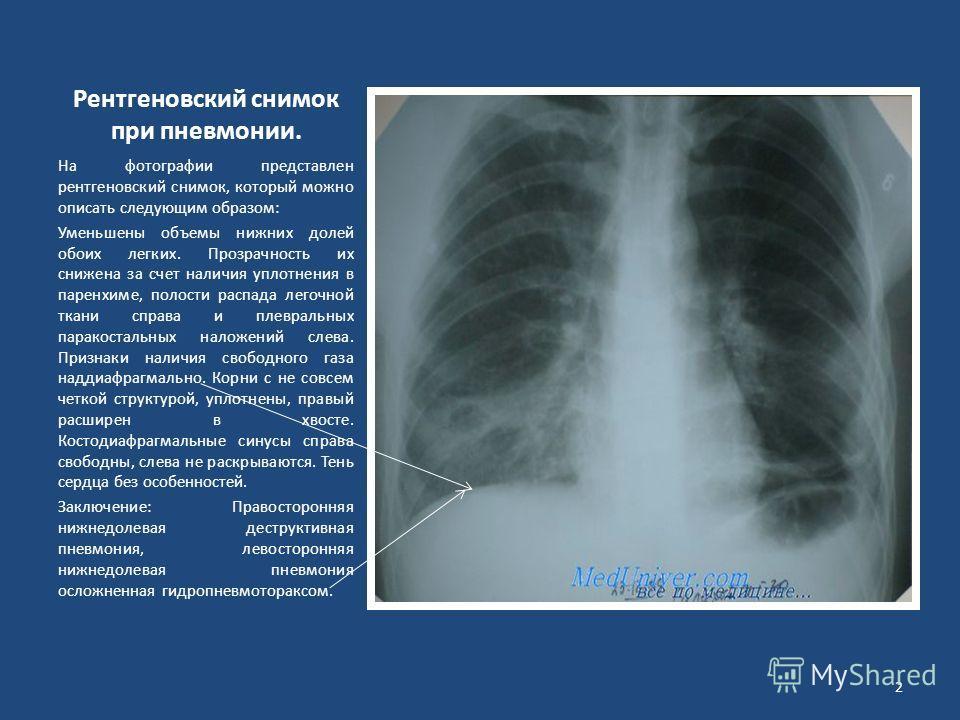 Рентгеновский снимок при пневмонии. На фотографии представлен рентгеновский снимок, который можно описать следующим образом: Уменьшены объемы нижних долей обоих легких. Прозрачность их снижена за счет наличия уплотнения в паренхиме, полости распада л