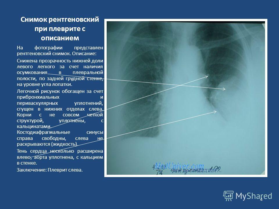 Снимок рентгеновский при плеврите с описанием На фотографии представлен рентгеновский снимок. Описание: Снижена прозрачность нижней доли левого легкого за счет наличия осумкования в плевральной полости, по задней грудной стенке, на уровне угла лопатк
