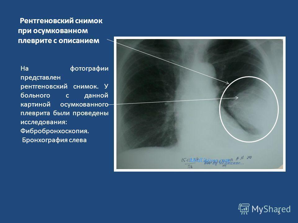 Рентгеновский снимок при осумкованном плеврите с описанием На фотографии представлен рентгеновский снимок. У больного с данной картиной осумкованного плеврита были проведены исследования: Фибробронхоскопия. Бронхография слева 5
