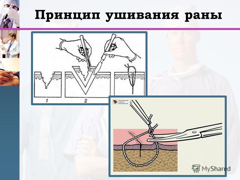 Принцип ушивания раны