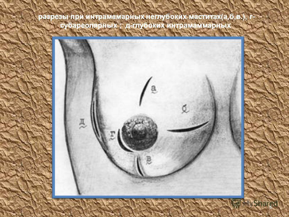разрезы при интрамаммарных неглубоких маститах(а,б,в.), г- субареолярных ; д-глубоких интрамаммарных 8