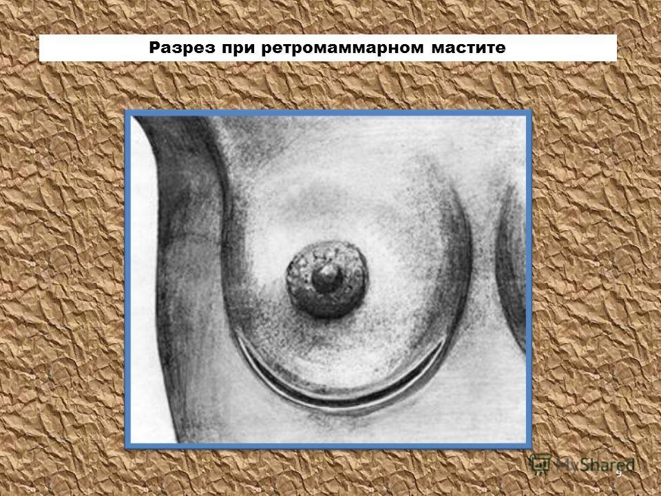 Разрез при ретромаммарном мастите 9