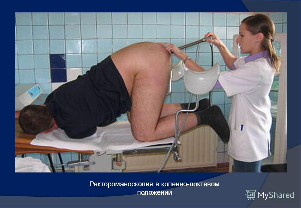 Ректоскопия в коленно-локтевом положении