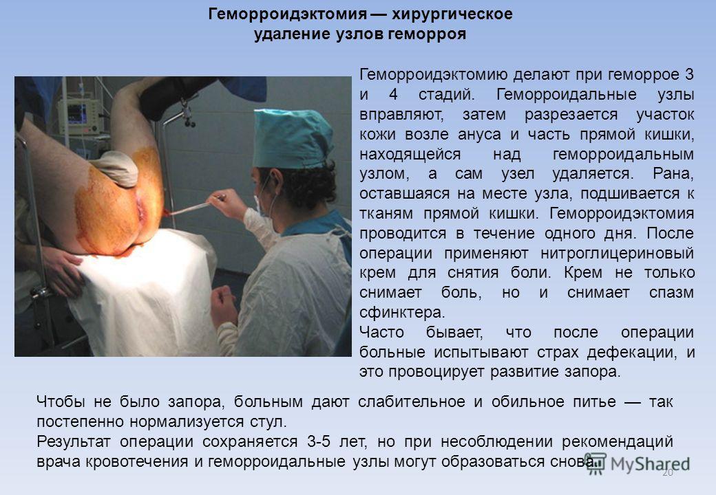 Геморроидэктомию делают при геморрое 3 и 4 стадий. Геморроидальные узлы вправляют, затем разрезается участок кожи возле ануса и часть прямой кишки, находящейся над геморроидальным узлом, а сам узел удаляется. Рана, оставшаяся на месте узла, подшивает