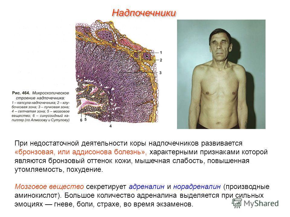 При недостаточной деятельности коры надпочечников развивается «бронзовая, или аддисонова болезнь», характерными признаками которой являются бронзовый оттенок кожи, мышечная слабость, повышенная утомляемость, похудение. Мозговое вещество секретирует а