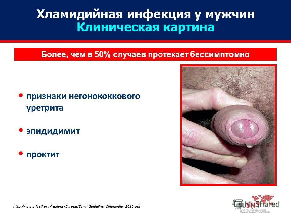 Более, чем в 50% случаев протекает бессимптомно признаки негонококкового уретрита эпидидимит проктит http://www.iusti.org/regions/Europe/Euro_Guideline_Chlamydia_2010. pdf Хламидийная инфекция у мужчин Клиническая картина