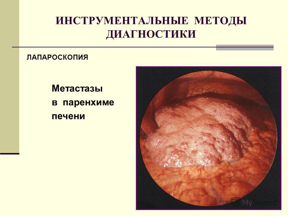 ИНСТРУМЕНТАЛЬНЫЕ МЕТОДЫ ДИАГНОСТИКИ ЛАПАРОСКОПИЯ Метастазы в паренхиме печени ЛАПАРОСКОПИЯ