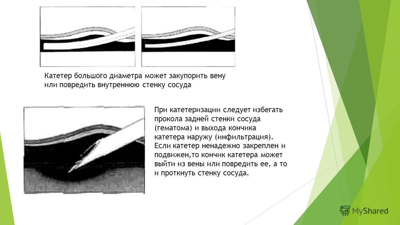 Катетер большого диаметра может закупорить вену или повредить внутреннюю стенку сосуда При катетеризации следует избегать прокола задней стенки сосуда (гематома) и выхода кончика катетера наружу (инфильтрация). Если катетер ненадежно закреплен и подв