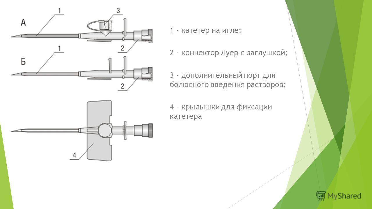 1 - катетер на игле; 2 - коннектор Луер с заглушкой; 3 - дополнительный порт для болюсного введения растворов; 4 - крылышки для фиксации катетера