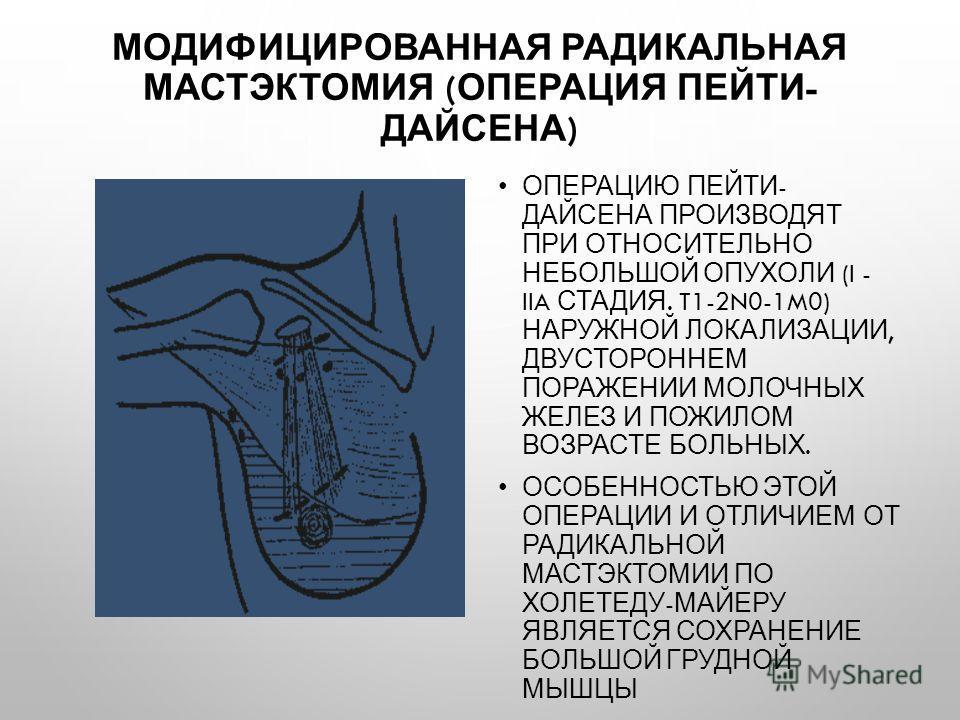 МОДИФИЦИРОВАННАЯ РАДИКАЛЬНАЯ МАСТЭКТОМИЯ ( ОПЕРАЦИЯ ПЕЙТИ - ДАЙСЕНА ) ОПЕРАЦИЮ ПЕЙТИ - ДАЙСЕНА ПРОИЗВОДЯТ ПРИ ОТНОСИТЕЛЬНО НЕБОЛЬШОЙ ОПУХОЛИ (I - IIA СТАДИЯ. T1-2N0-1M0) НАРУЖНОЙ ЛОКАЛИЗАЦИИ, ДВУСТОРОННЕМ ПОРАЖЕНИИ МОЛОЧНЫХ ЖЕЛЕЗ И ПОЖИЛОМ ВОЗРАСТЕ Б