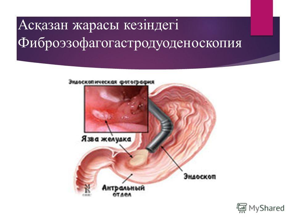 Асқазан жарасы кезіндегі Фиброэзофагогастродуоденоскопия