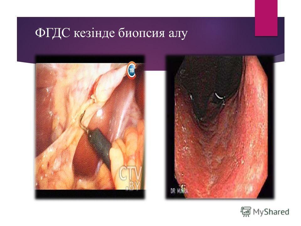 ФГДС кезінде биопсия алу