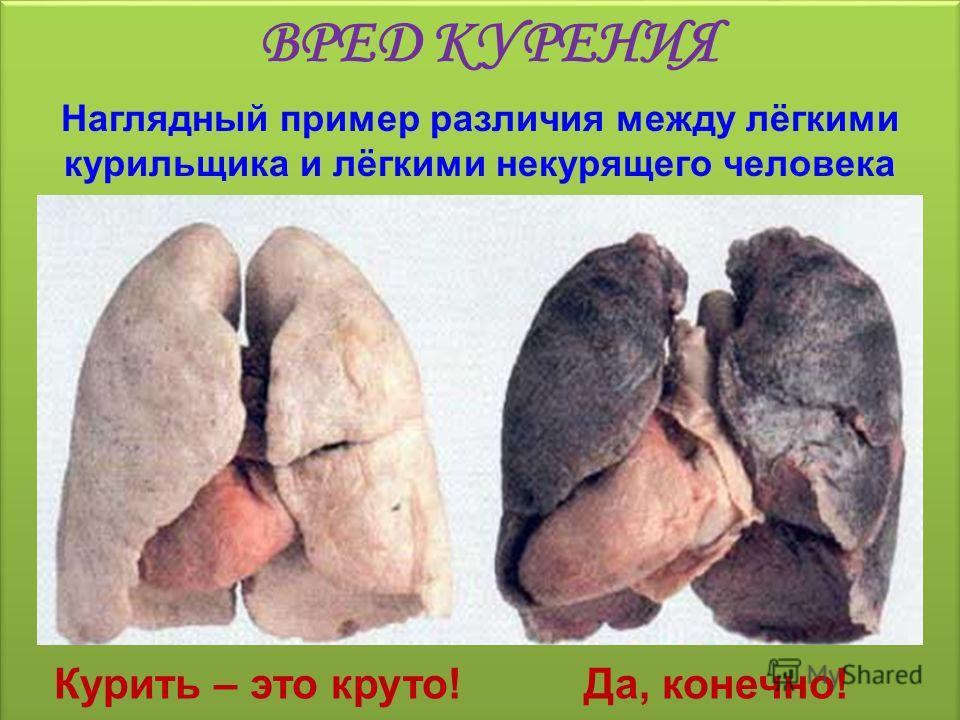 Наглядный пример различия между лёгкими курильщика и лёгкими некурящего человека Курить – это круто! ВРЕД КУРЕНИЯ Да, конечно!