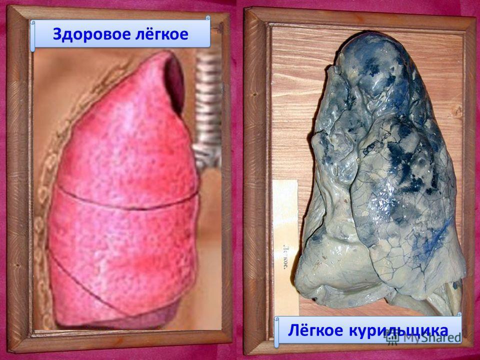 Здоровое лёгкое Лёгкое курильщика