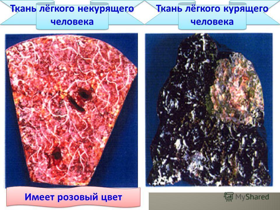 Ткань лёгкого некурящего человека Ткань лёгкого курящего человека Имеет розовый цвет