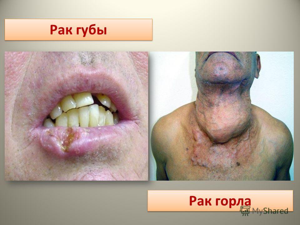 Рак губы Рак горла