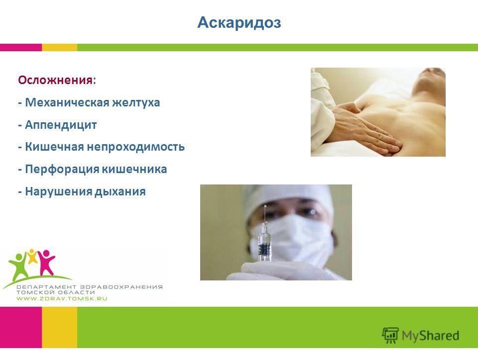 Аскаридоз Осложнения: - Механическая желтуха - Аппендицит - Кишечная непроходимость - Перфорация кишечника - Нарушения дыхания