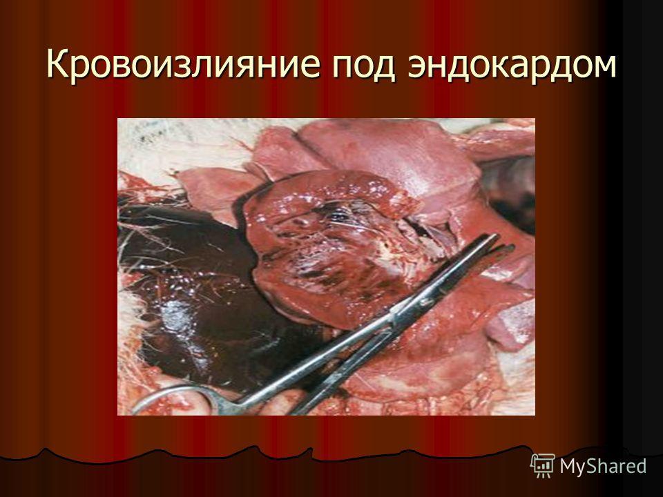 Кровоизлияние под эндокардом