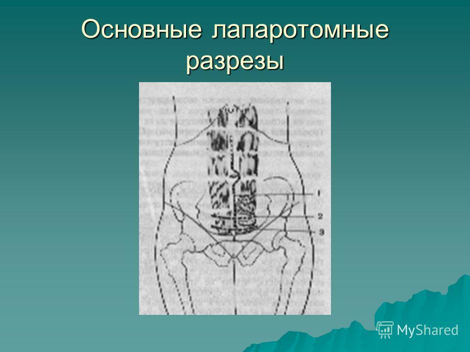 Основные лапаротомные разрезы
