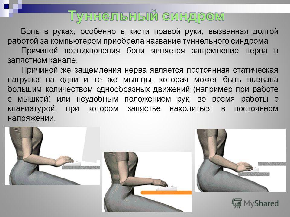 Боль в руках, особенно в кисти правой руки, вызванная долгой работой за компьютером приобрела название туннельного синдрома Причиной возникновения боли является защемление нерва в запястном канале. Причиной же защемления нерва является постоянная ста