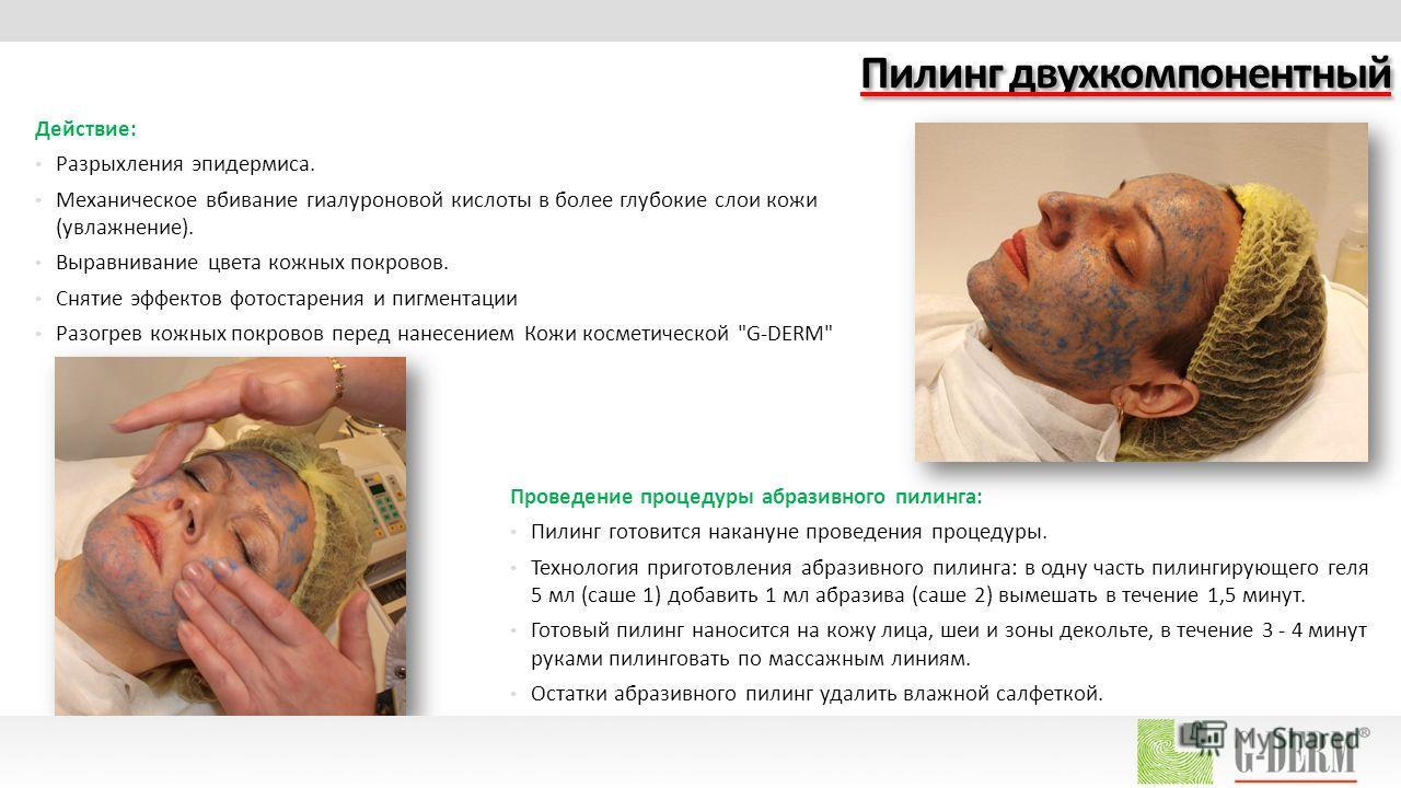 Пилинг двухкомпонентный Действие: Разрыхления эпидермиса. Механическое вбивание гиалуроновой кислоты в более глубокие слои кожи (увлажнение). Выравнивание цвета кожных покровов. Снятие эффектов фотостарения и пигментации Разогрев кожных покровов пере