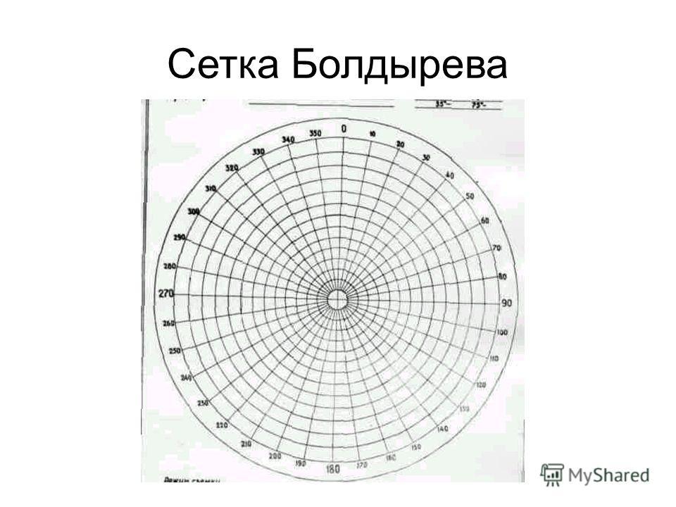 Сетка Болдырева