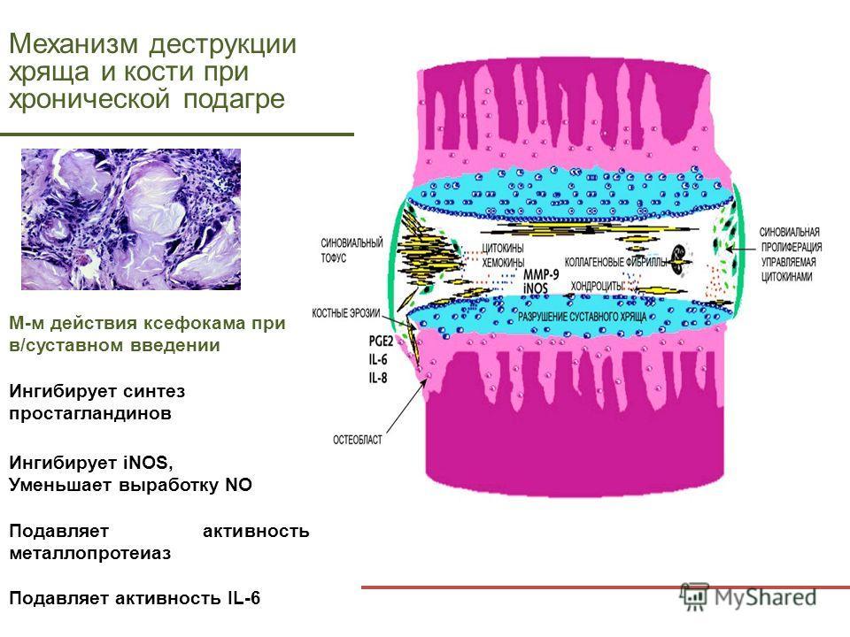 Механизм деструкции хряща и кости при хронической подагре М-м действия ксефокама при в/cуставном введении Ингибирует синтез простагландинов Ингибирует iNOS, Уменьшает выработку NO Подавляет активность металлопротеиаз Подавляет активность IL-6