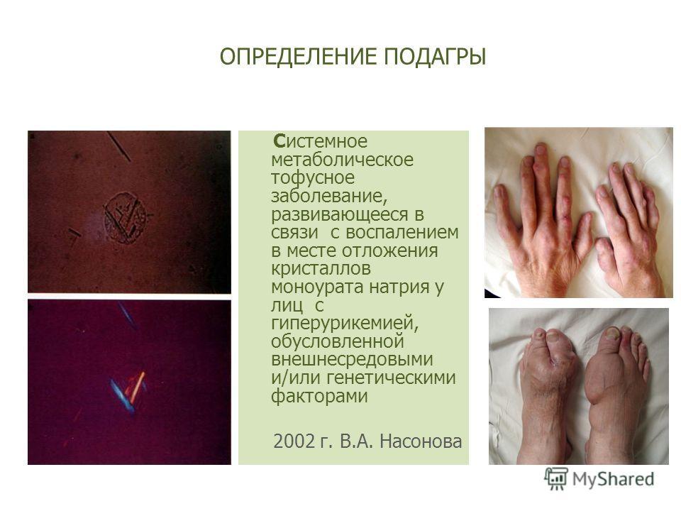 ОПРЕДЕЛЕНИЕ ПОДАГРЫ Системное метаболическое тофусное заболевание, развивающееся в связи с воспалением в месте отложения кристаллов моноурата натрия у лиц с гиперурикемией, обусловленной внешнесредовыми и/или генетическими факторами 2002 г. В.А. Насо