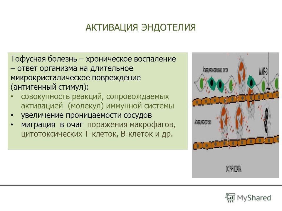 АКТИВАЦИЯ ЭНДОТЕЛИЯ Тофусная болезнь – хроническое воспаление – ответ организма на длительное микрокристаллическое повреждение (антигенный стимул): совокупность реакций, сопровождаемых активацией (молекул) иммунной системы увеличение проницаемости со