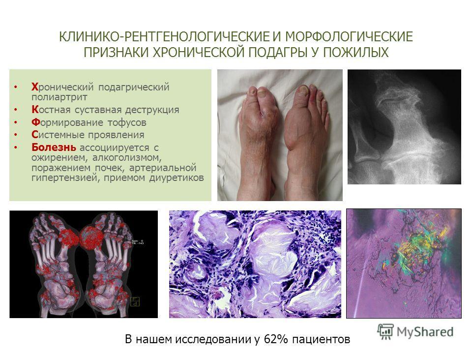 хронический подагрический артрит