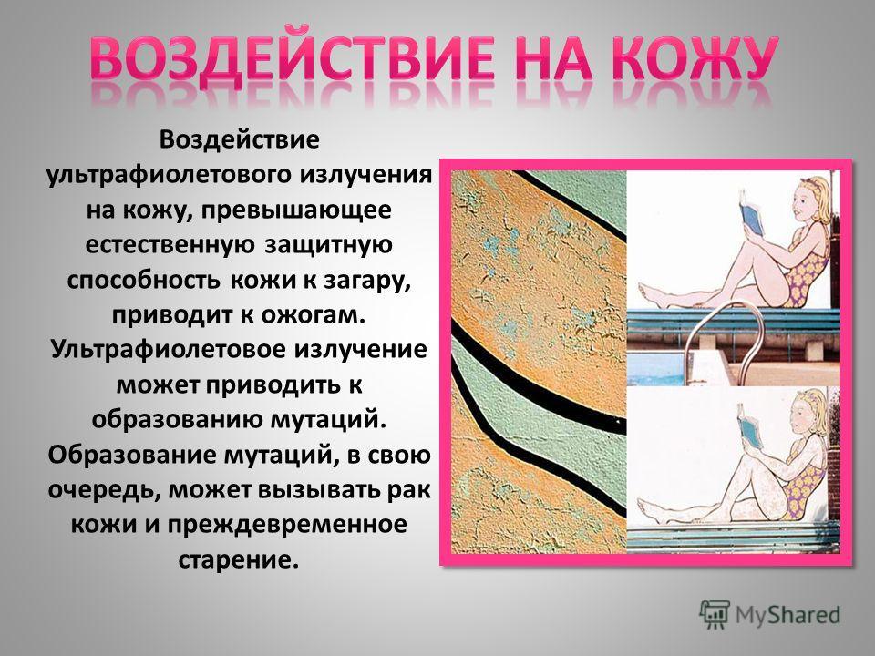 Воздействие ультрафиолетового излучения на кожу, превышающее естественную защитную способность кожи к загару, приводит к ожогам. Ультрафиолетовое излучение может приводить к образованию мутаций. Образование мутаций, в свою очередь, может вызывать рак