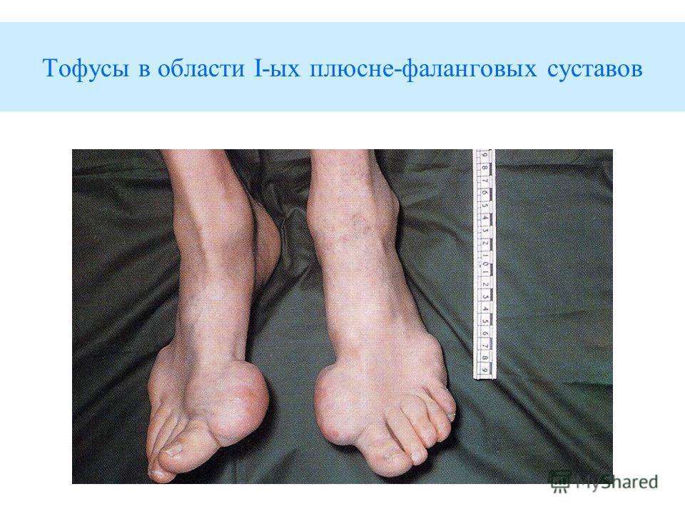 Тофусы в области I-ых плюсне-фаланговых суставов