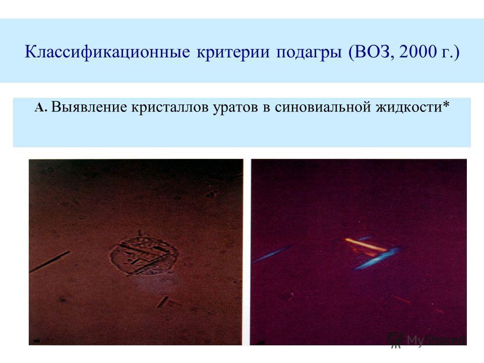 Классификационные критерии подагры (ВОЗ, 2000 г.) А. Выявление кристаллов уратов в синовиальной жидкости*