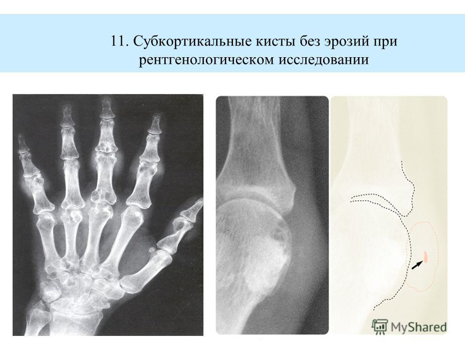 11. Субкортикальные кисты без эрозий при рентгенологическом исследовании