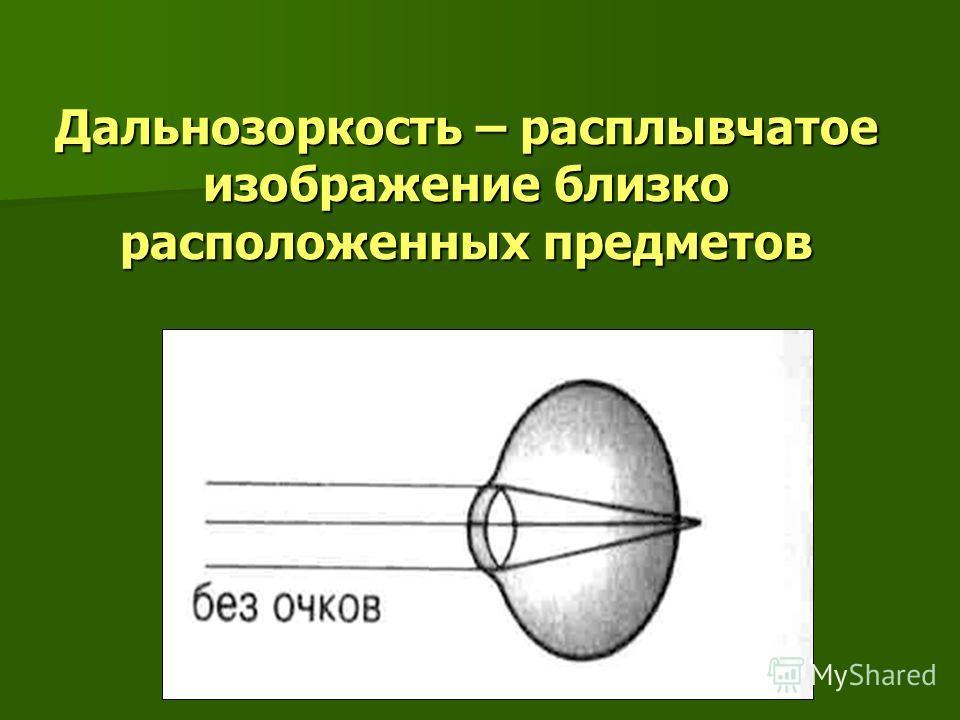 Дальнозоркость – расплывчатое изображение близко расположенных предметов