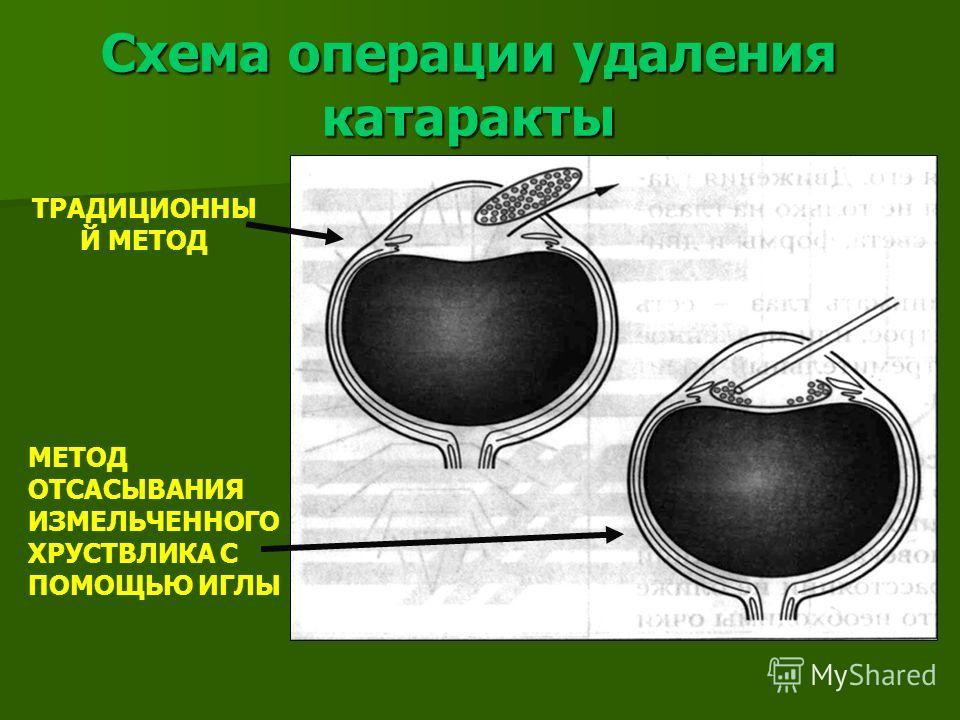 Схема операции удаления катаракты ТРАДИЦИОННЫ Й МЕТОД МЕТОД ОТСАСЫВАНИЯ ИЗМЕЛЬЧЕННОГО ХРУСТВЛИКА С ПОМОЩЬЮ ИГЛЫ