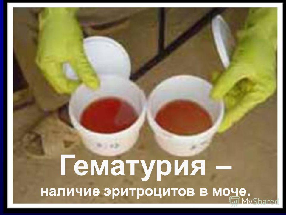 Гематурия – наличие эритроцитов в моче.