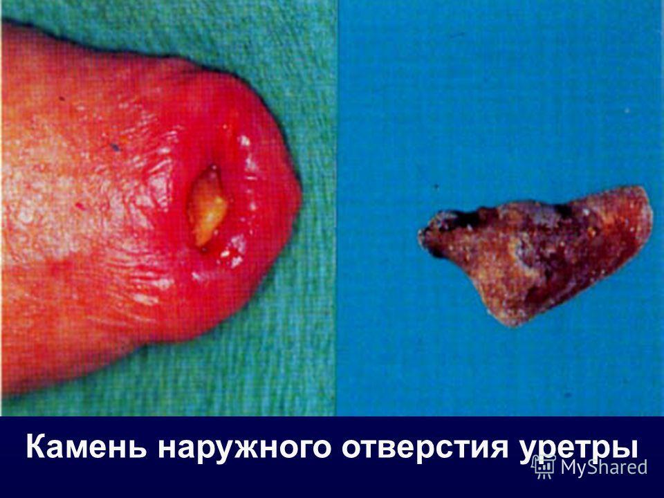 Камень наружного отверстия уретры