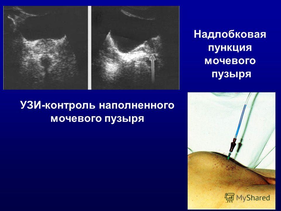 УЗИ-контроль наполненного мочевого пузыря Надлобковая пункция мочевого пузыря