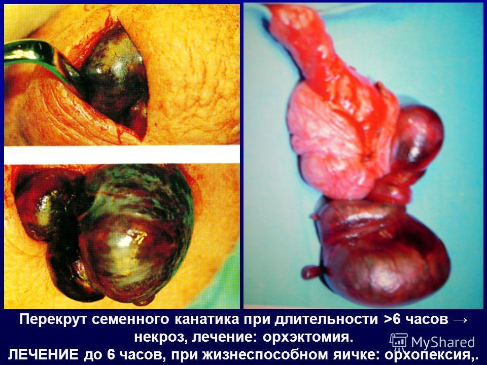 Перекрут семенного канатика при длительности >6 часов некроз, лечение: орхэктомия. ЛЕЧЕНИЕ до 6 часов, при жизнеспособном яичке: орхопексия,.