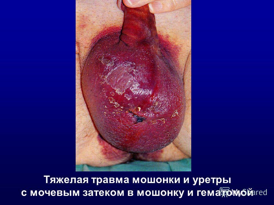 Тяжелая травма мошонки и уретры с мочевым затеком в мошонку и гематомой