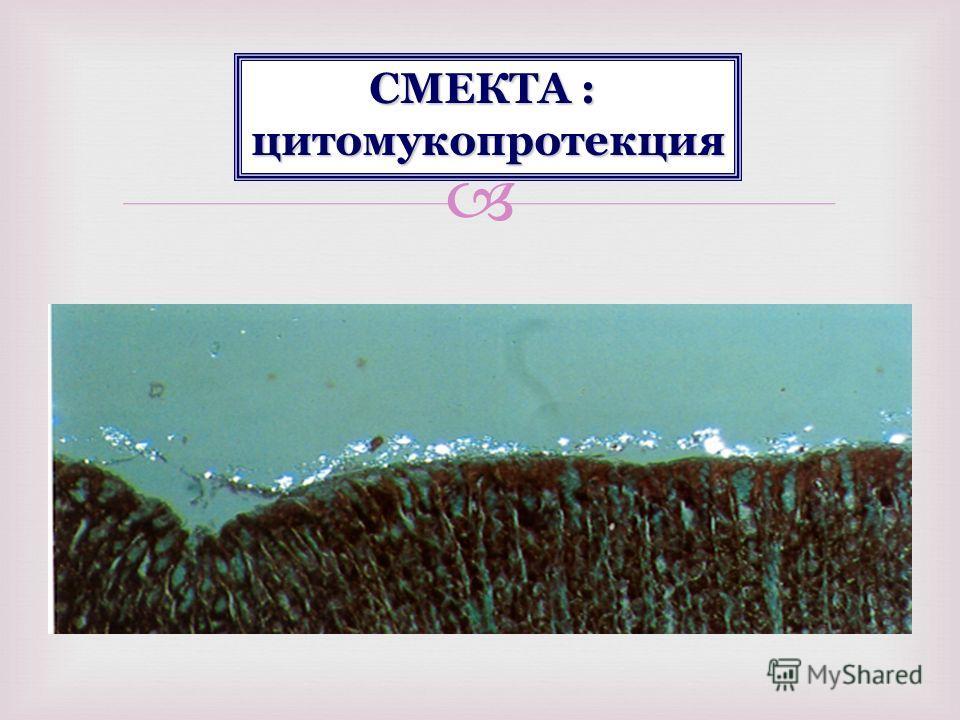СМЕКТА : цитомукопротекция