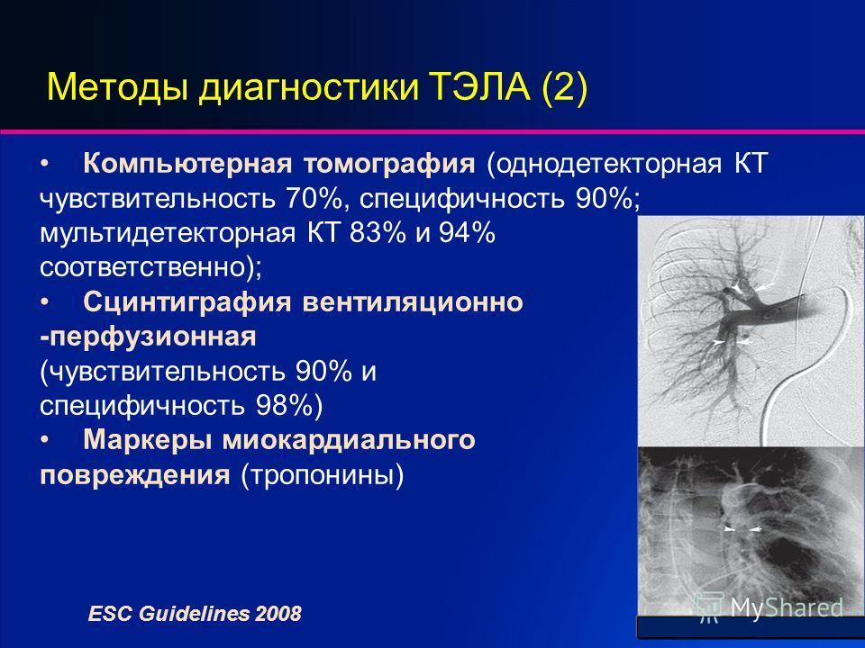Методы диагностики ТЭЛА (2) Компьютерная томография (однодетекторная КТ чувствительность 70%, специфичность 90%; мультидетекторная КТ 83% и 94% соответственно); Сцинтиграфия вентиляционно -перфузионная (чувствительность 90% и специфичность 98%) Марке