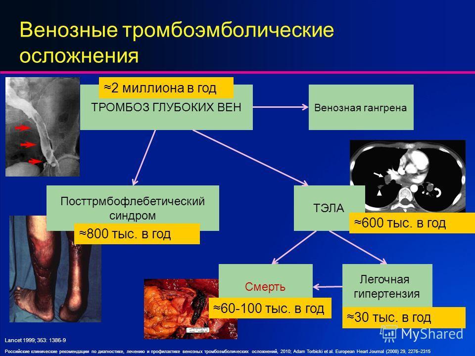 Венозные тромбоэмболические осложнения ТРОМБОЗ ГЛУБОКИХ ВЕН Посттрмбофлебетический синдром ТЭЛА Легочная гипертензия Смерть 2 миллиона в год 800 тыс. в год Lancet 1999; 353: 1386-9 600 тыс. в год 60-100 тыс. в год 30 тыс. в год Венозная гангрена Росс
