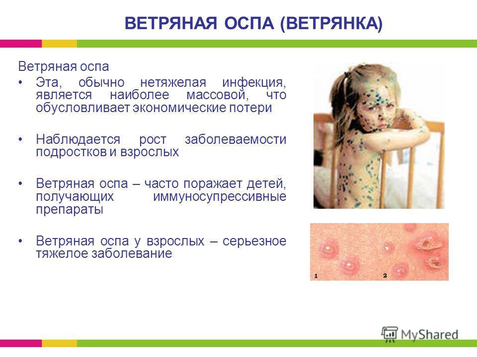 Ветряная оспа Эта, обычно нетяжелая инфекция, является наиболее массовой, что обусловливает экономические потери Наблюдается рост заболеваемости подростков и взрослых Ветряная оспа – часто поражает детей, получающих иммуносупрессивные препараты Ветря