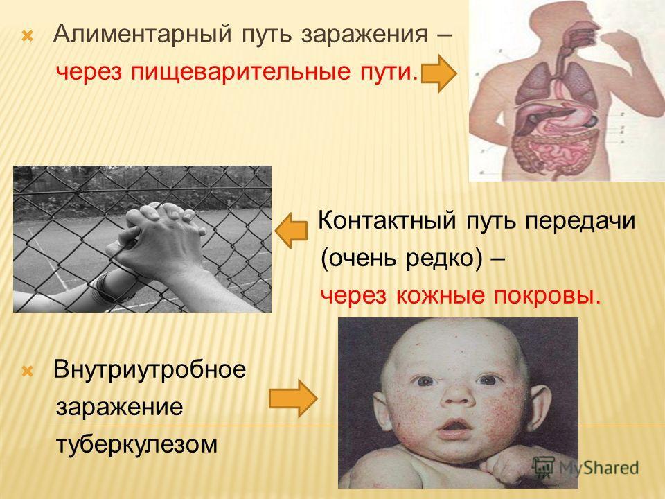 Алиментарный путь заражения – через пищеварительные пути. Контактный путь передачи (очень редко) – через кожные покровы. Внутриутробное заражение туберкулезом