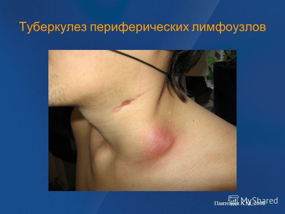 Туберкулез периферических лимфоузлов Пантелеев А.М, 2008