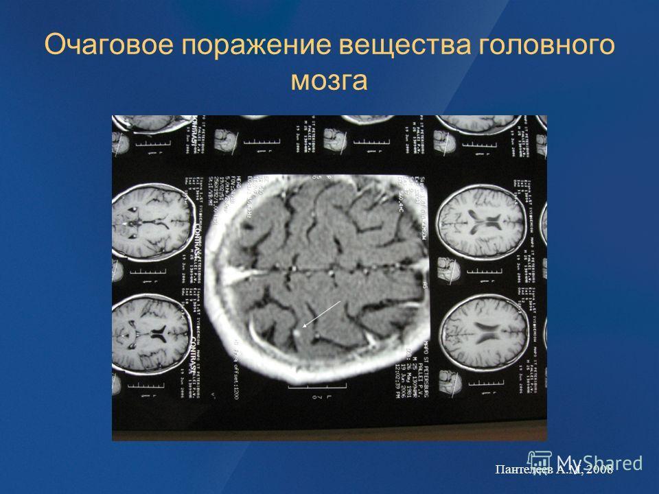 Очаговое поражение вещества головного мозга Пантелеев А.М, 2008