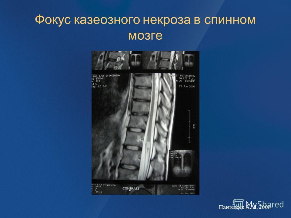 Фокус казеозного некроза в спинном мозге Пантелеев А.М, 2008