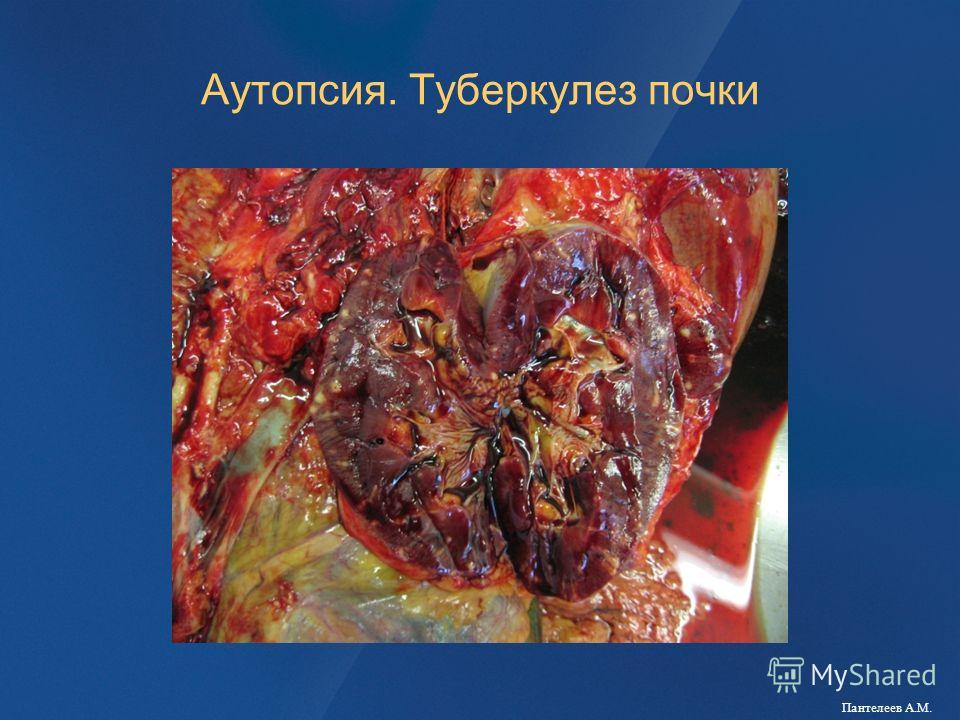 Аутопсия. Туберкулез почки Пантелеев А.М.